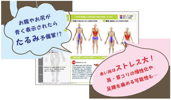 筋肉診断書